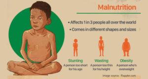 Severe Acute Malnourishment